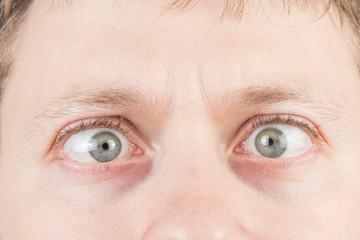 Man's crazy eyes