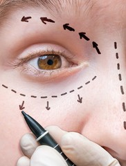 Facial plastic surgery. Hand is drawing lines with marker around eye