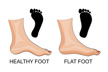 feet healthy and flat feet. footprint
