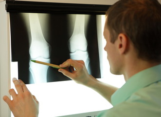 specialist watching image of knees and lower limbs  at xray film viewer