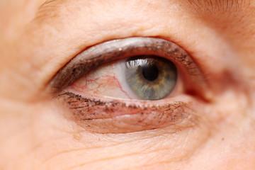 ilness eye