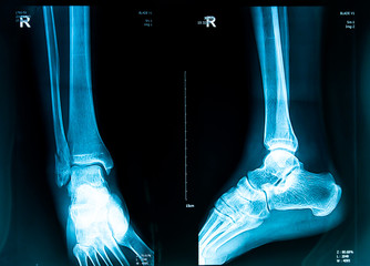 human foot right ankel and leg xray picture