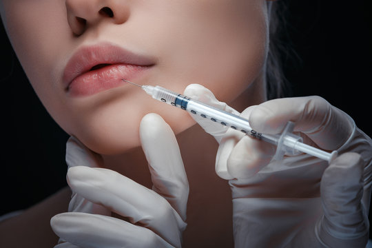 Detailled close up view of a lip injection