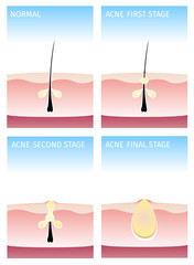 How acne happen. acne stages, vector