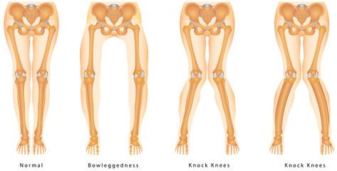 Shape of the legs - Genu varum, genu valgum