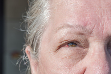 Middle aged woman with red eye