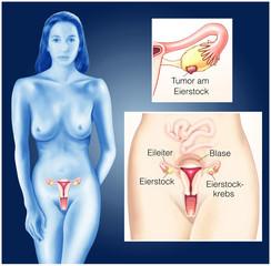 Eierstockkrebs.Ovarialkarzinom