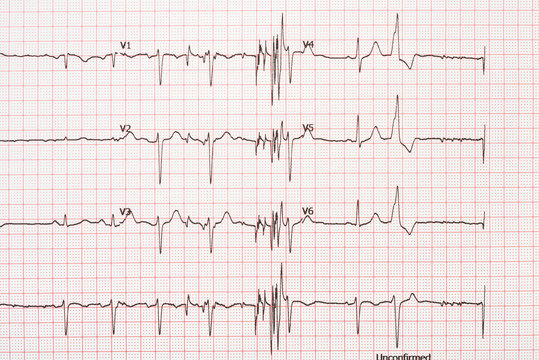 Extrasystole On 12 Lead Electrocardiogram Record Paper