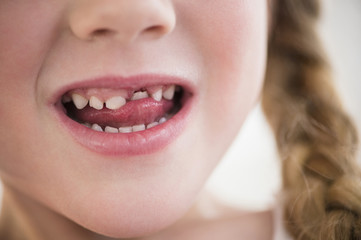 Caucasian girl wiggling loose tooth