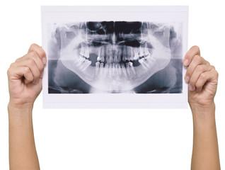 panoramic x-ray skan