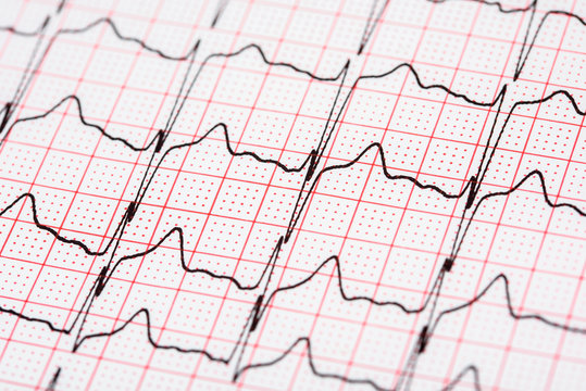 Extrasystoles On Electrocardiogram Record Paper