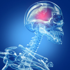 Skeleton made from glass or crystal. Head ache. 3D Illustration.