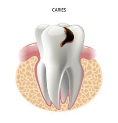 vector image tooth caries disease