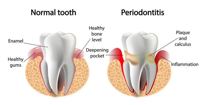 vector image tooth  Periodontitis disease