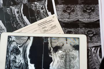 MRT Bilder mit Verordnung zur Krankenhausbehandlung