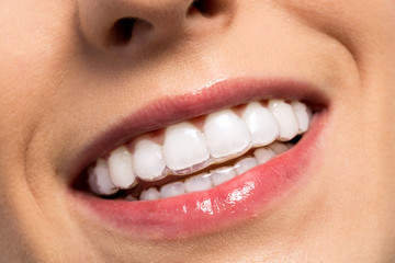 Smiling girl wearing invisible teeth braces