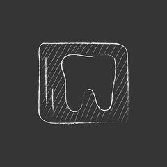 X-ray of tooth. Drawn in chalk icon.