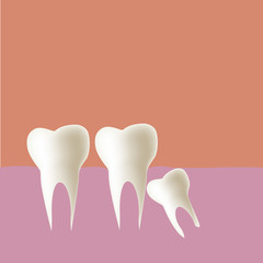 Wisdom tooth (Angular) in mouth, Vector illustration.