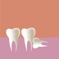 Wisdom tooth (Horizontal) in mouth, Vector illustration.
