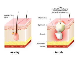 Healthy skin and Pustules