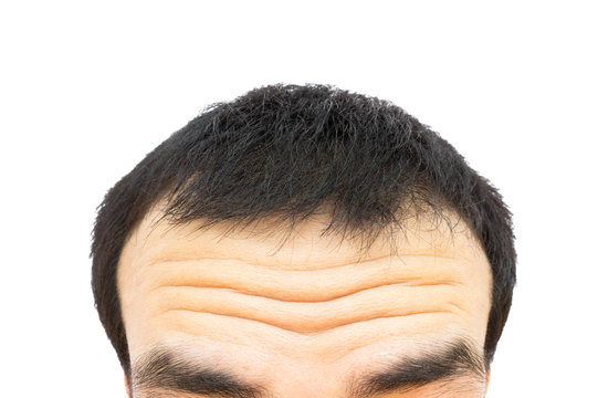 Closeup wrinkles on forehead young man