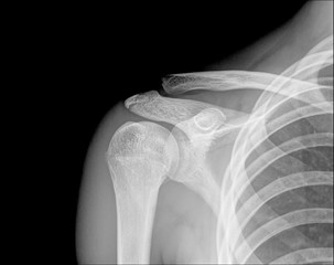X-ray of human shoulder