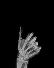 Human hand x-ray - Medical Image.