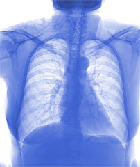 View of a human x-ray film, taken to examine the lungs