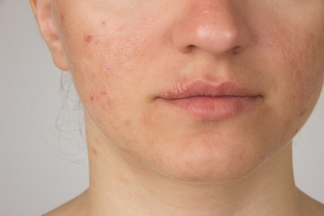 Herpes with pus on the lips of a young girl and pimples on the f