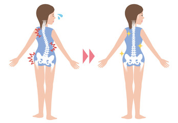 chiropractic before after image, from bad posture to good posture, woman's body and backbone, vector illustration