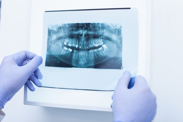 Male doctor holding and looking at dental x-ray