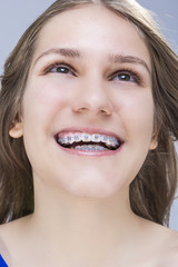 Closeup Portrait of Caucasian Female Teenage Girl With Teeth Braces