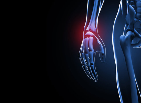 3d render Human hand and wrist pain caused by arthritis and carpal tunnel syndrome injury in the hand joint as an anatomy with skeleton and highlighted injured body part as a medical and health care.