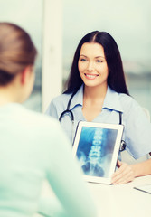 doctor or nurse showing x-ray with tablet pc
