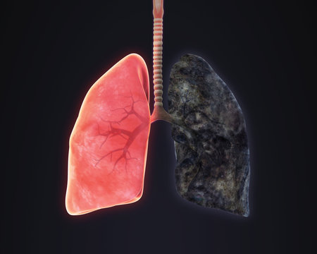Healthy Lung and Smokers Lung Illustration. 3D render