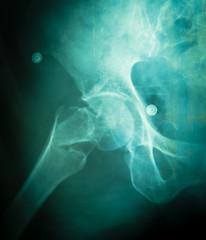 X-ray of the pelvis