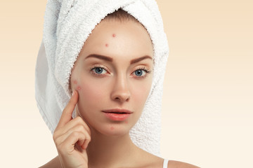 Close up shot of young Caucasian female with blue eyes and acne skin, pointing at pimple, looking at the camera while getting facial treatment in spa salon. Dermatology and problem skin concept