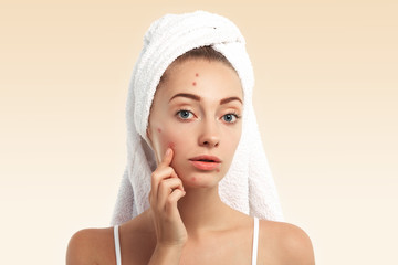 Close up isolated portrait of beautiful young Caucasian woman with blue eyes and problem skin, looking at the camera, pointing at pimple wearing white towel on her head against blue studio background