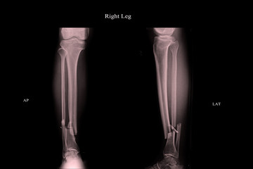 closed fracture left leg tibia and fibula