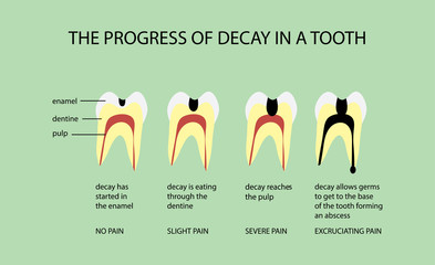 The Progress of Decay in a Tooth Diagram