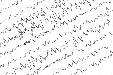 Electroencephalography test