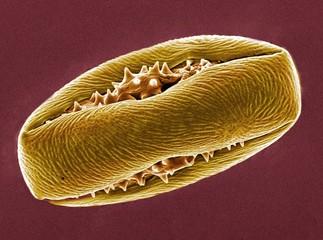 Horse chestnut pollen, SEM