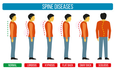 Body posture defect. Vector infographics of spine diseases. Scoliosis and lordosis medical diagrams