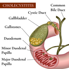 Сholecystitis. Inflammation of the gallbladder and bile ducts. Gallstones.
