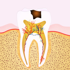 phase of caries