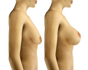 3d illustration Breast Enlargement with Uplift surgery  before a