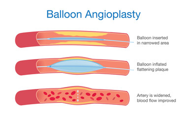Balloon angioplasty procedure to expanded artery for blood flow improved. This illustration about medical.