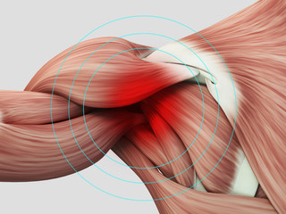 Human anatomy muscle shoulder. Pain or injury. 3D illustration.