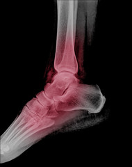 Human foot ankel and leg xray picture.