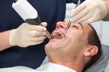 Dentist scanning patient's teeth with CEREC scanner